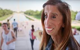 Lizzie Velasquez world ugliest person