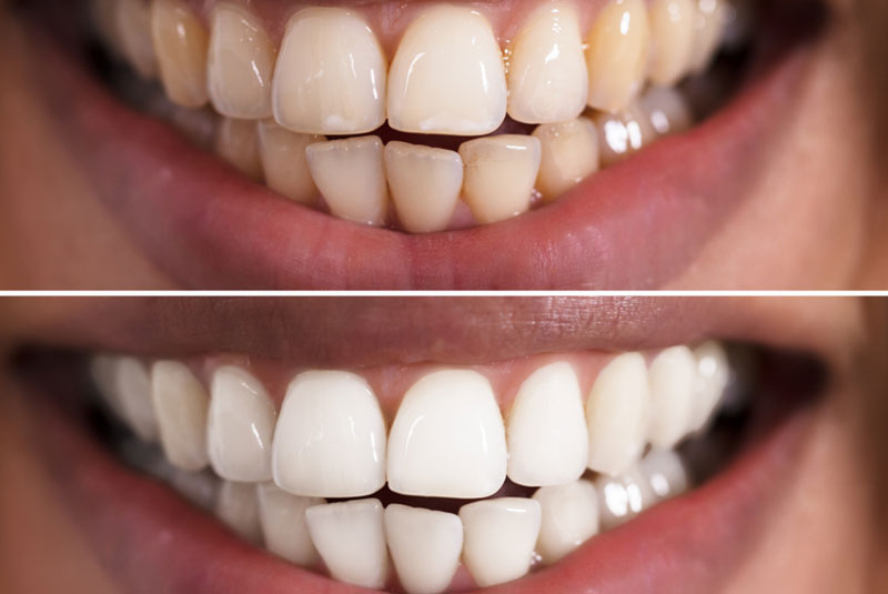 tooth whitening tips